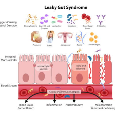 Is your gut leaky? Fix it!